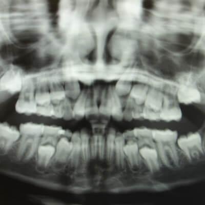 röntgenfoto gebit